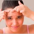 acne-juvenil_hb41c