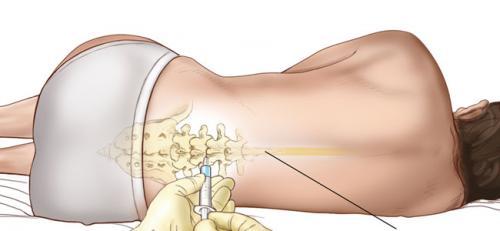 beneficios-del-parto-con-epidural_ltfec