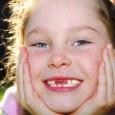 cambio-de-dientes_564he