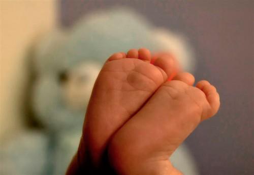 Cirugías en los bebés