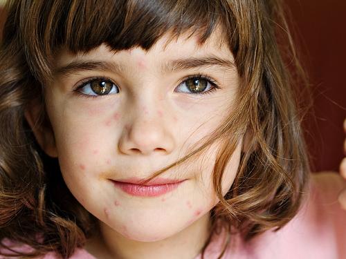¿Cómo sobrellevar la varicela de nuestros hijos?