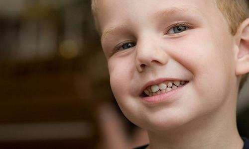 Consejos para mantener blancos dientes de los niños