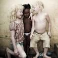 ninos-albinos_9expo