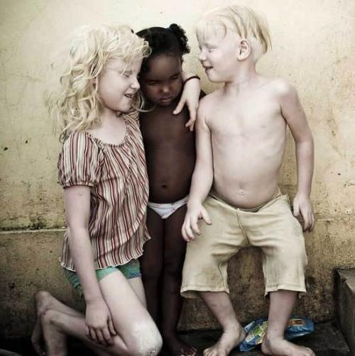 Niños albinos