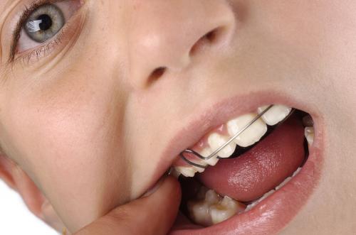ortodoncia-infantil_qbp53