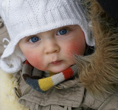 rosacea-en-los-bebes_s6l02